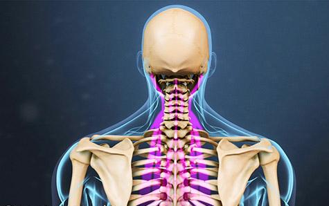 Stiff Neck Causes, Symptoms, and Treatment